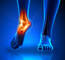 ankle-pain-blue_250pxwide_2.jpg