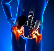 hip-pain-blue_215X205.jpg