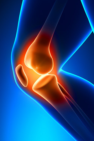 knee-pain-blue_300x450.jpg