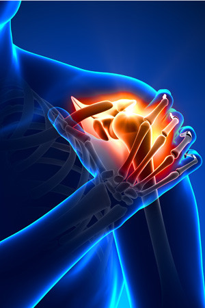 shoulder-pain-blue-300x450.jpg